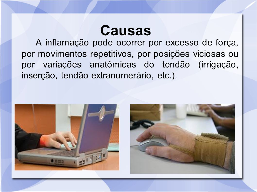 Causas A inflamação pode ocorrer por excesso de força, por movimentos repetitivos, por posições viciosas ou por variações anatômicas do tendão (irriga