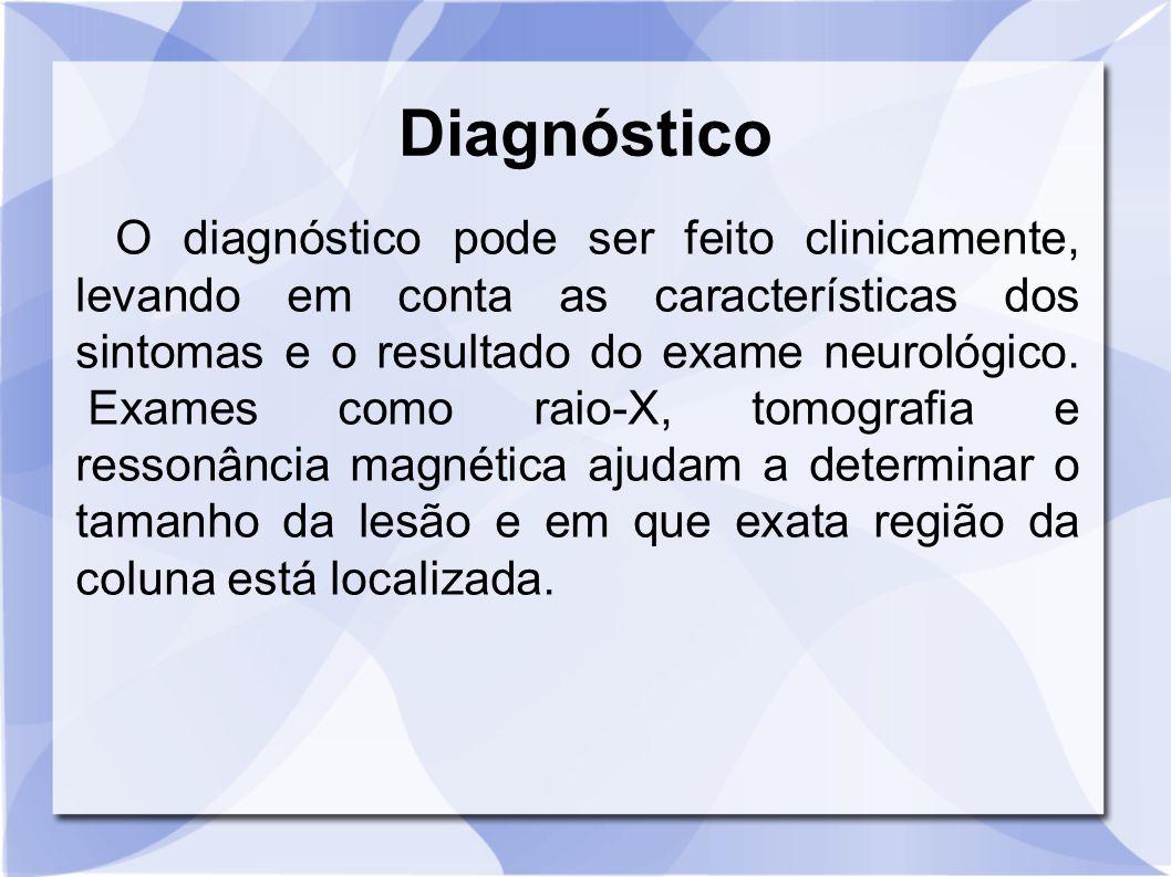 Diagnóstico O diagnóstico pode ser feito clinicamente, levando em conta as características dos sintomas e o resultado do exame neurológico. Exames com