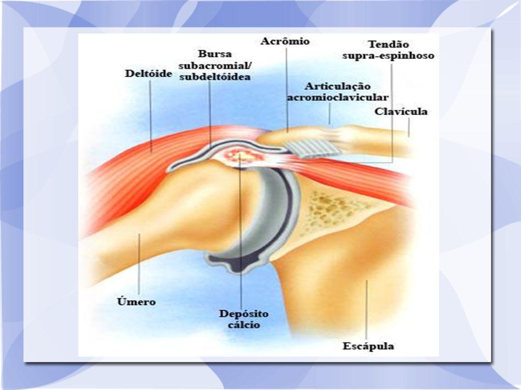 Tratamento O tratamento da sacroileíte é feito com o uso de anti inflamatórios e analgésicos.