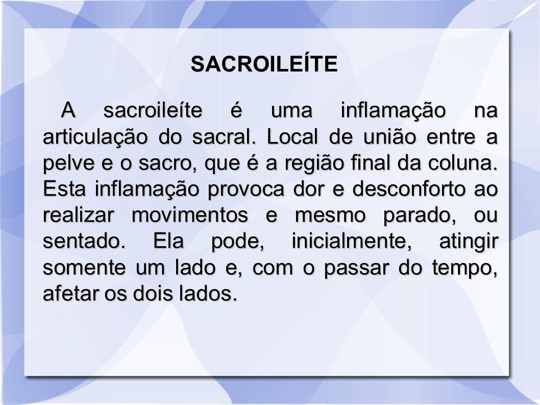 SACROILEÍTE A sacroileíte é uma inflamação na articulação do sacral. Local de união entre a pelve e o sacro, que é a região final da coluna. Esta infl