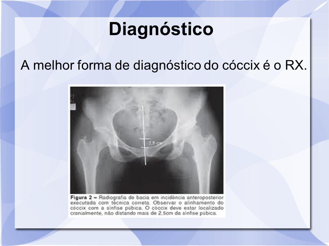Diagnóstico A melhor forma de diagnóstico do cóccix é o RX.