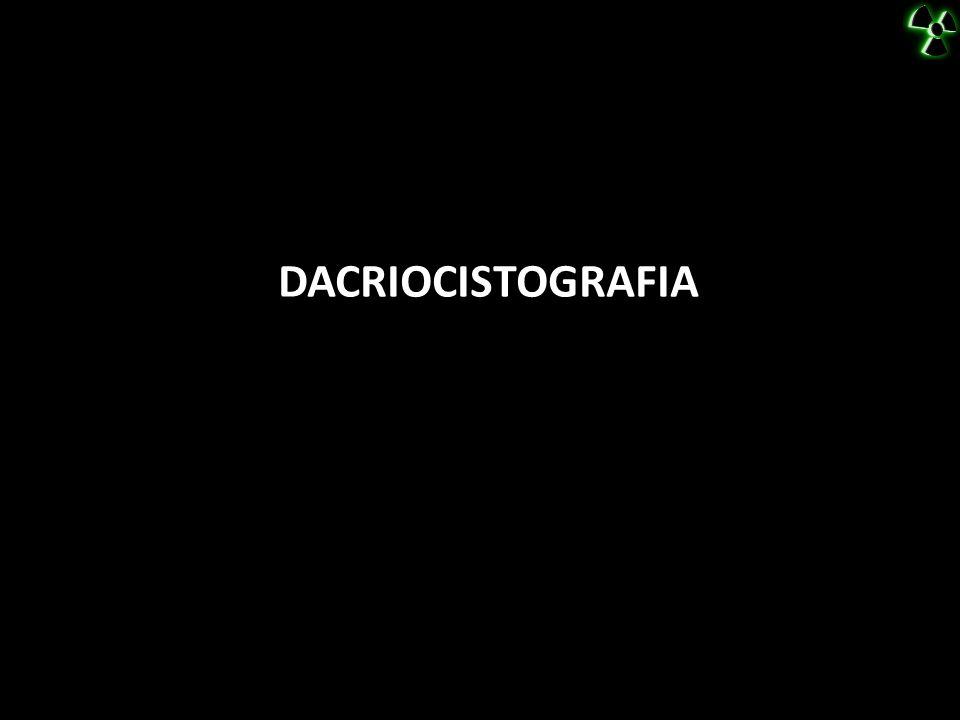 DACRIOCISTOGRAFIA TRATAMENTO CIRURGICO (CURETAGEM DE SECREÇÃO) EPÍFORA (INFECÇÃO PERICANALICULAR CARACTERIZADA POR EDEMA DO CANALÍCULO)