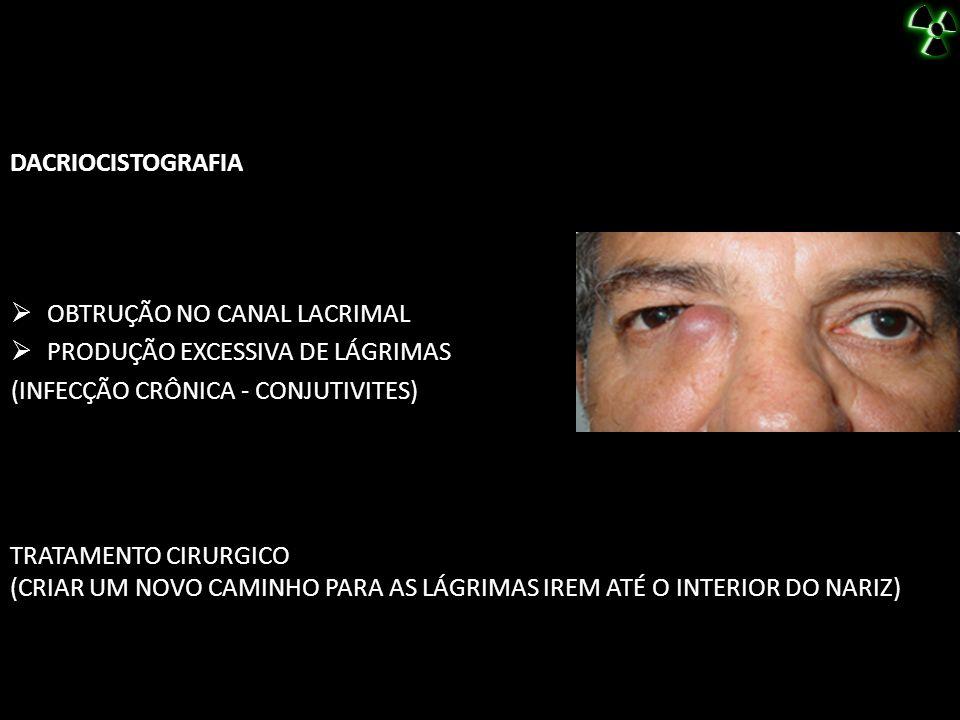 DACRIOCISTOGRAFIA TRATAMENTO CIRURGICO (CRIAR UM NOVO CAMINHO PARA AS LÁGRIMAS IREM ATÉ O INTERIOR DO NARIZ) OBTRUÇÃO NO CANAL LACRIMAL PRODUÇÃO EXCES