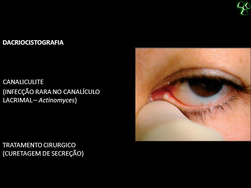 DACRIOCISTOGRAFIA TRATAMENTO CIRURGICO (CURETAGEM DE SECREÇÃO) CANALICULITE (INFECÇÃO RARA NO CANALÍCULO LACRIMAL – Actinomyces)