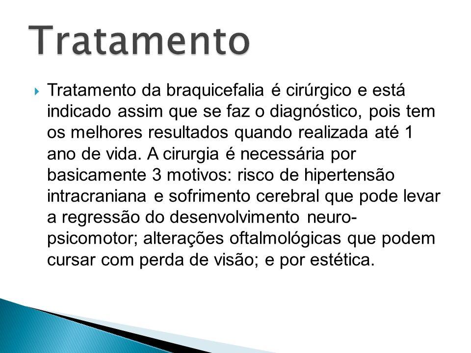 Tratamento da braquicefalia é cirúrgico e está indicado assim que se faz o diagnóstico, pois tem os melhores resultados quando realizada até 1 ano de