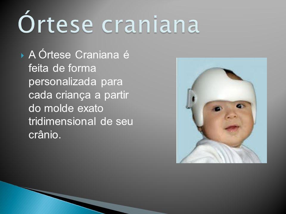 A Órtese Craniana é feita de forma personalizada para cada criança a partir do molde exato tridimensional de seu crânio.