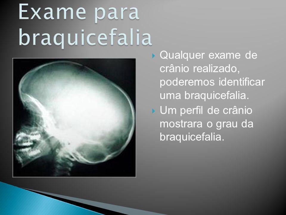 Qualquer exame de crânio realizado, poderemos identificar uma braquicefalia. Um perfil de crânio mostrara o grau da braquicefalia.