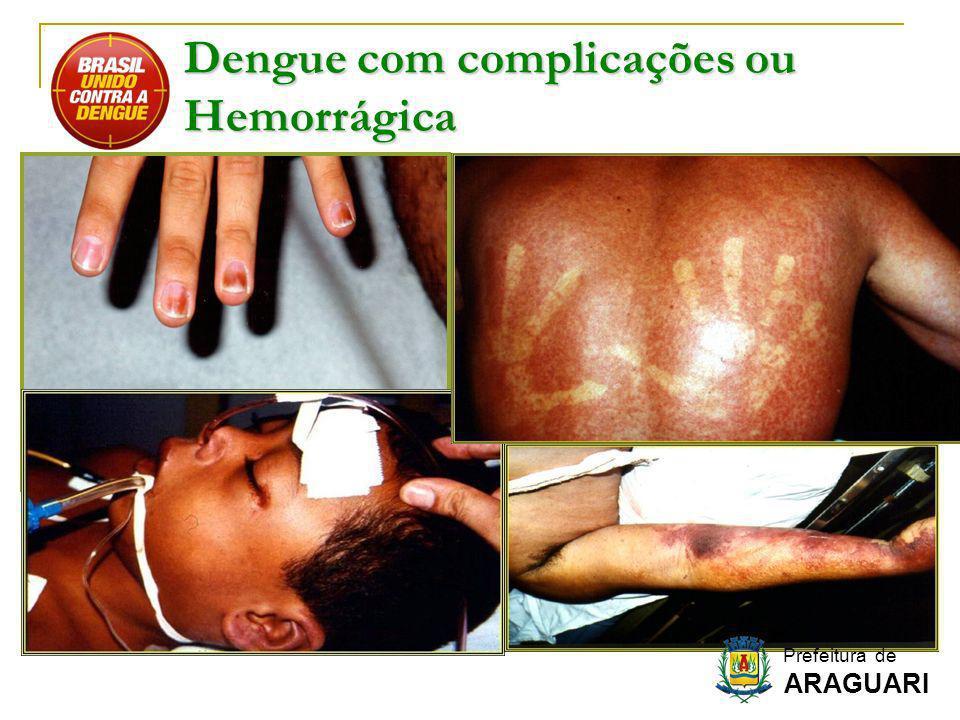 Dengue com complicações ou Hemorrágica Prefeitura de ARAGUARI