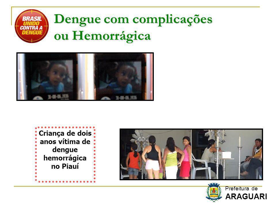 Dengue com complicações ou Hemorrágica Criança de dois anos vítima de dengue hemorrágica no Piauí Prefeitura de ARAGUARI