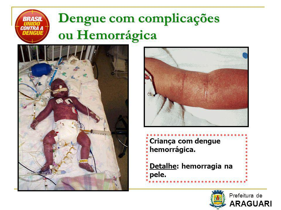 Dengue com complicações ou Hemorrágica Criança com dengue hemorrágica. Detalhe: hemorragia na pele. Prefeitura de ARAGUARI