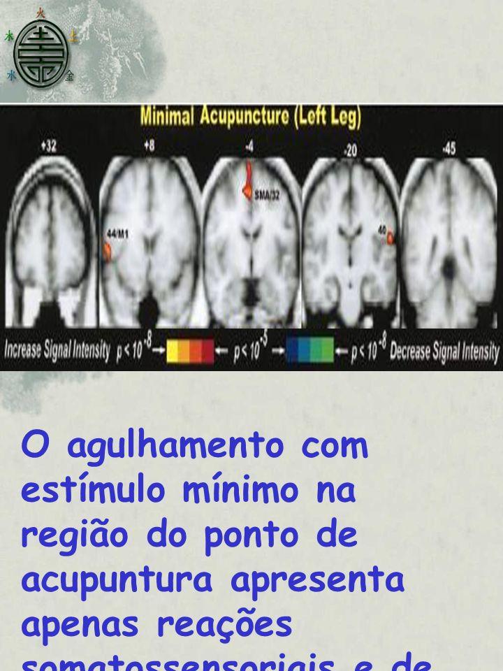 O agulhamento com estímulo mínimo na região do ponto de acupuntura apresenta apenas reações somatossensoriais e de menor intensidade