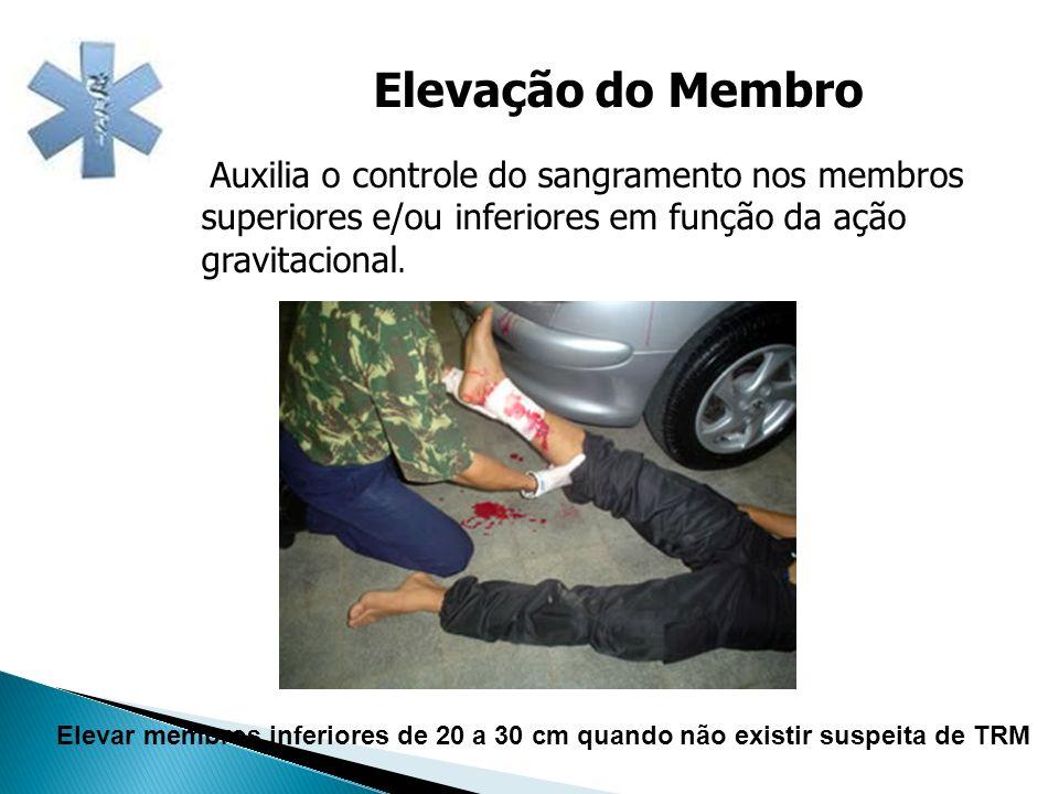 Elevação do Membro Auxilia o controle do sangramento nos membros superiores e/ou inferiores em função da ação gravitacional. Elevar membros inferiores