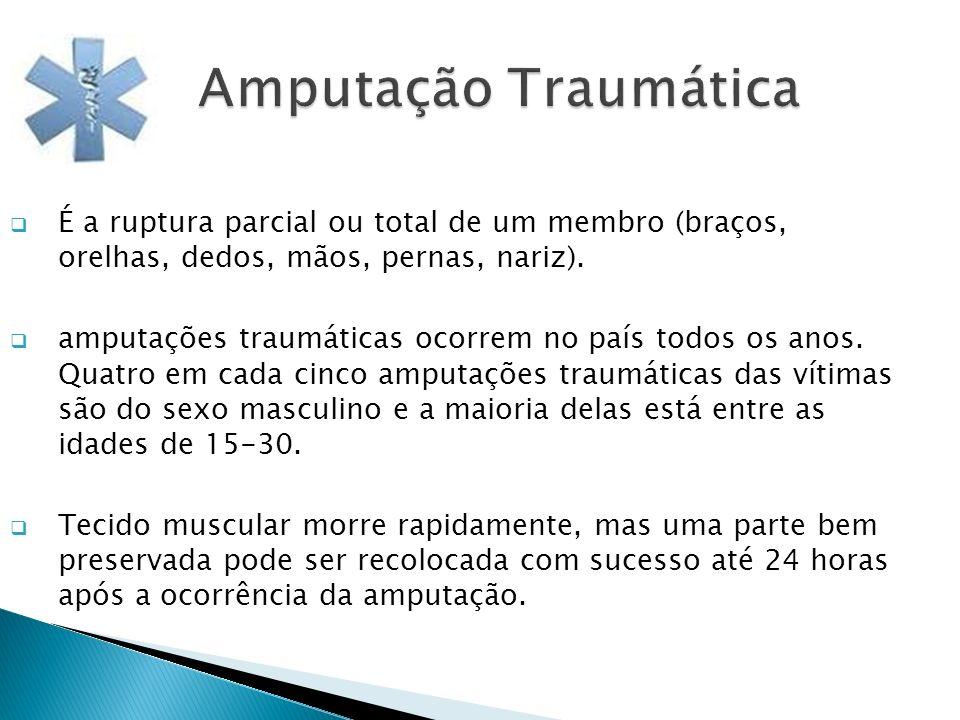 Amputação Traumática É a ruptura parcial ou total de um membro (braços, orelhas, dedos, mãos, pernas, nariz). amputações traumáticas ocorrem no país t