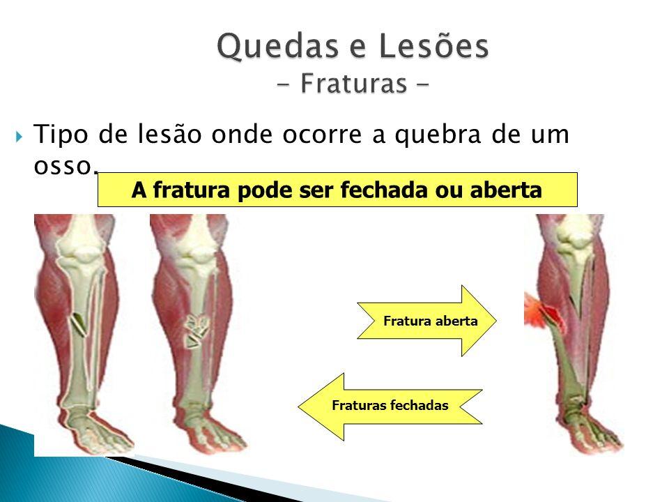 Quedas e Lesões - Fraturas - Tipo de lesão onde ocorre a quebra de um osso. A fratura pode ser fechada ou aberta Fratura aberta Fraturas fechadas