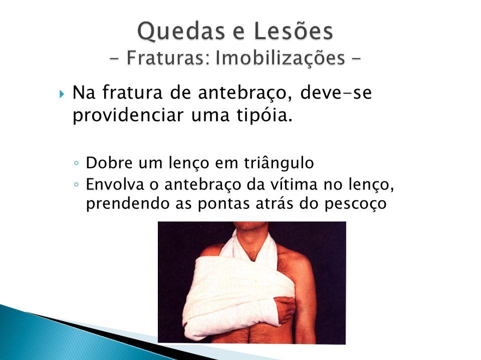 Quedas e Lesões - Fraturas: Imobilizações - Na fratura de antebraço, deve-se providenciar uma tipóia. Dobre um lenço em triângulo Envolva o antebraço