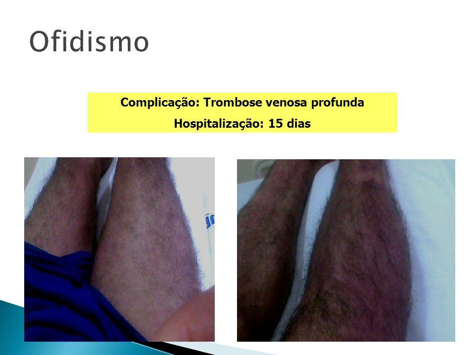 Complicação: Trombose venosa profunda Hospitalização: 15 dias