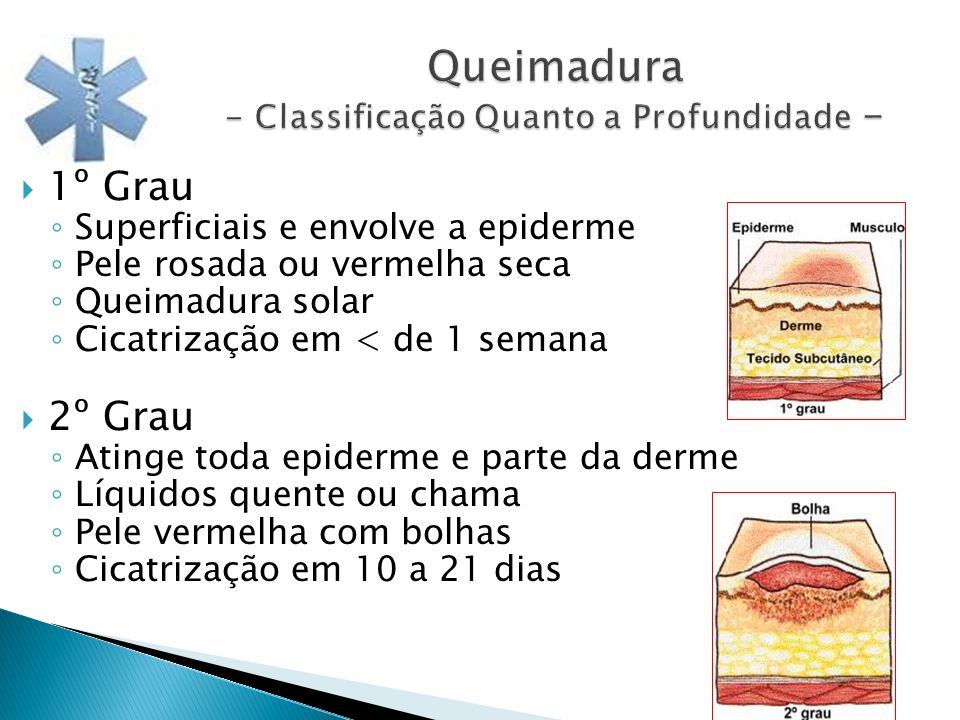 Queimadura - Classificação Quanto a Profundidade - 1º Grau Superficiais e envolve a epiderme Pele rosada ou vermelha seca Queimadura solar Cicatrizaçã