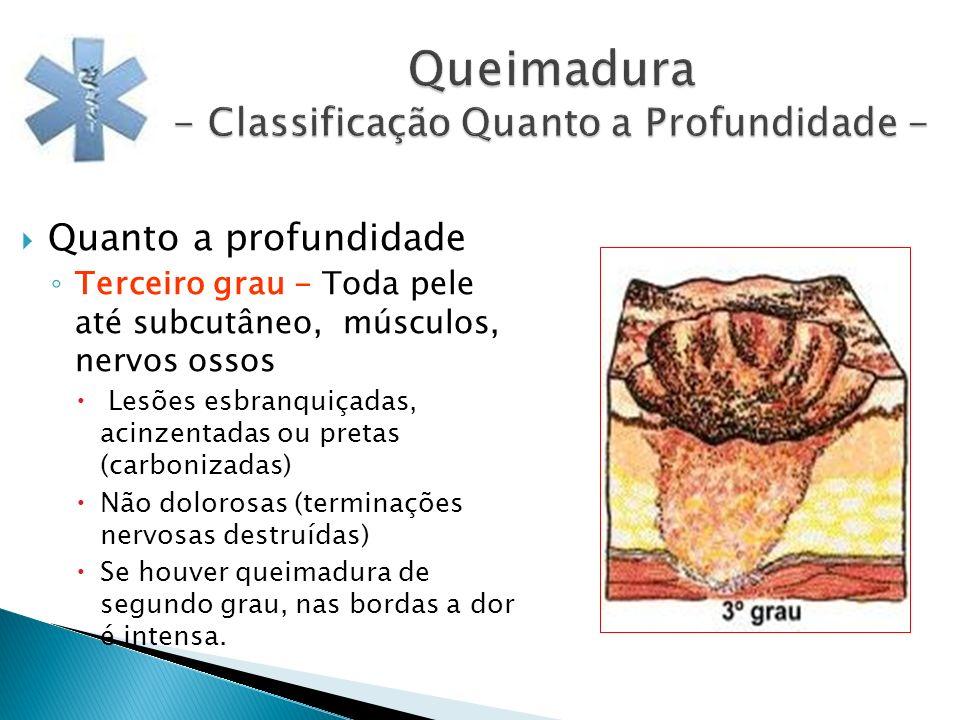 Queimadura - Classificação Quanto a Profundidade - Quanto a profundidade Terceiro grau - Toda pele até subcutâneo, músculos, nervos ossos Lesões esbra