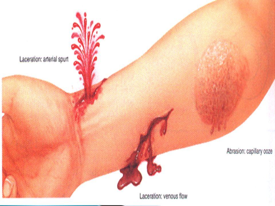 Hemorragias e Sangramentos - Sinais e Sintomas - Pulso rápido e fraco Pele fria Suor abundante Palidez intensa Mucosas (lábios e parte interna da pálp
