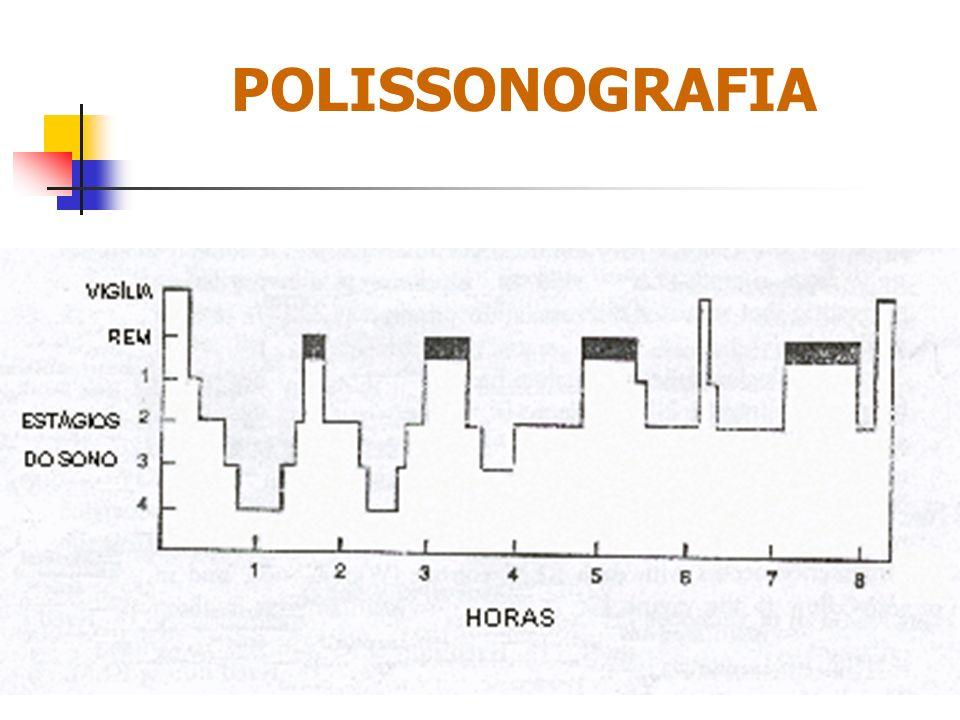 POLISSONOGRAFIA