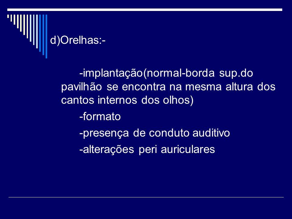 d)Orelhas:- -implantação(normal-borda sup.do pavilhão se encontra na mesma altura dos cantos internos dos olhos) -formato -presença de conduto auditiv