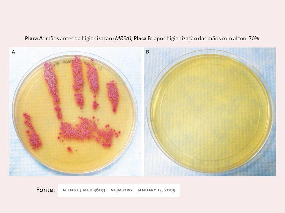 Fonte: Placa A: mãos antes da higienização (MRSA); Placa B: após higienização das mãos com álcool 70%.