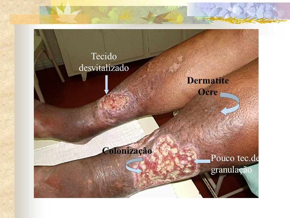 Dermatite Ocre Colonização Pouco tec.de granulação Tecido desvitalizado