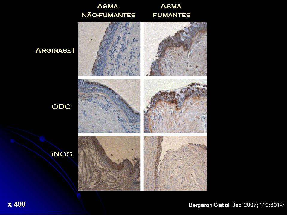 Asma não-fumantes Asma fumantes Arginase I ODC iNOS Bergeron C et al. Jaci 2007; 119:391-7 x 400
