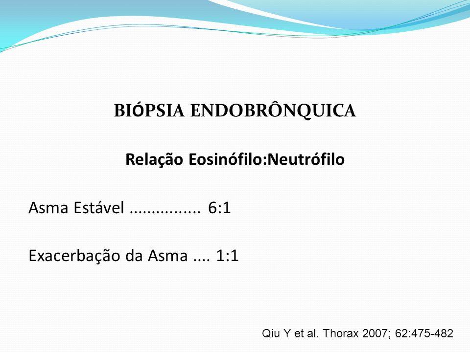BIÓPSIA ENDOBRÔNQUICA Relação Eosinófilo:Neutrófilo Asma Estável................ 6:1 Exacerbação da Asma.... 1:1 Qiu Y et al. Thorax 2007; 62:475-482