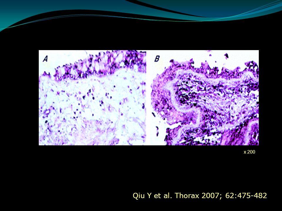 Qiu Y et al. Thorax 2007; 62:475-482 x 200
