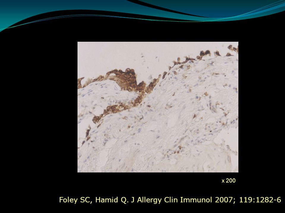 Foley SC, Hamid Q. J Allergy Clin Immunol 2007; 119:1282-6 x 200