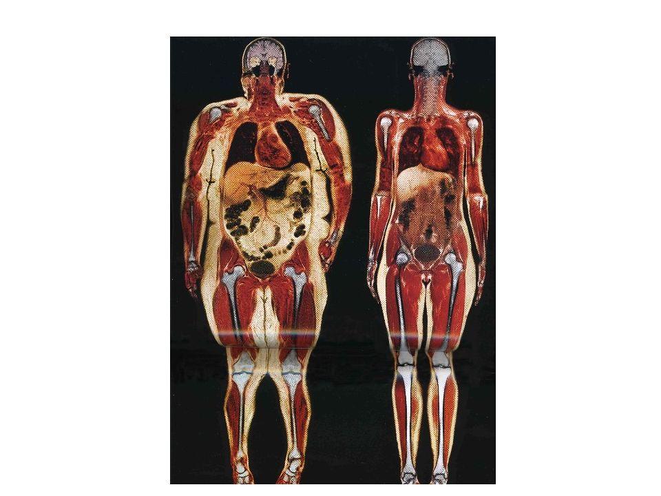 Ventilação Não-Invasiva FiO2 > 70%: atelectasia por absorção Dificuldade de abertura das VA Baixo VT: risco de lesão das pequenas VA Insuflação / atelectasia Pressão transmural Altos VT: insuflação do estômago