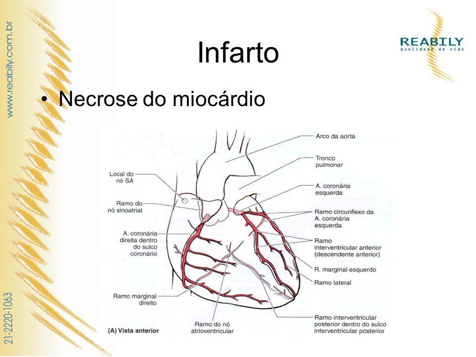 Infarto Necrose do miocárdio