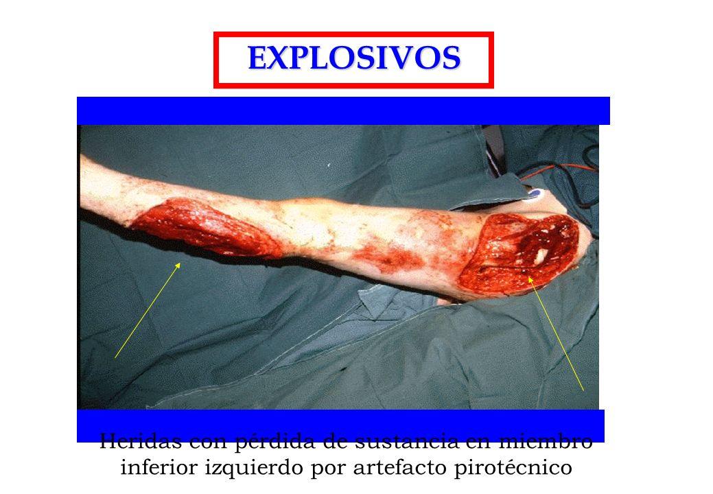 EXPLOSIVOS Heridas con pérdida de sustancia en miembro inferior izquierdo por artefacto pirotécnico