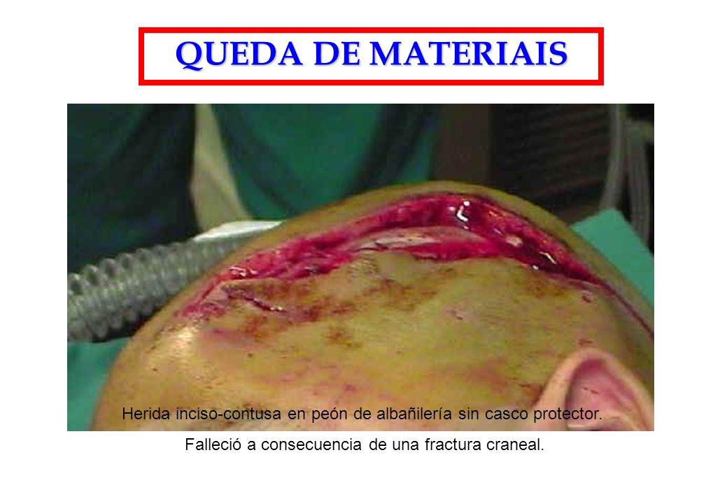 QUEDA DE MATERIAIS Herida inciso-contusa en peón de albañilería sin casco protector. Falleció a consecuencia de una fractura craneal.