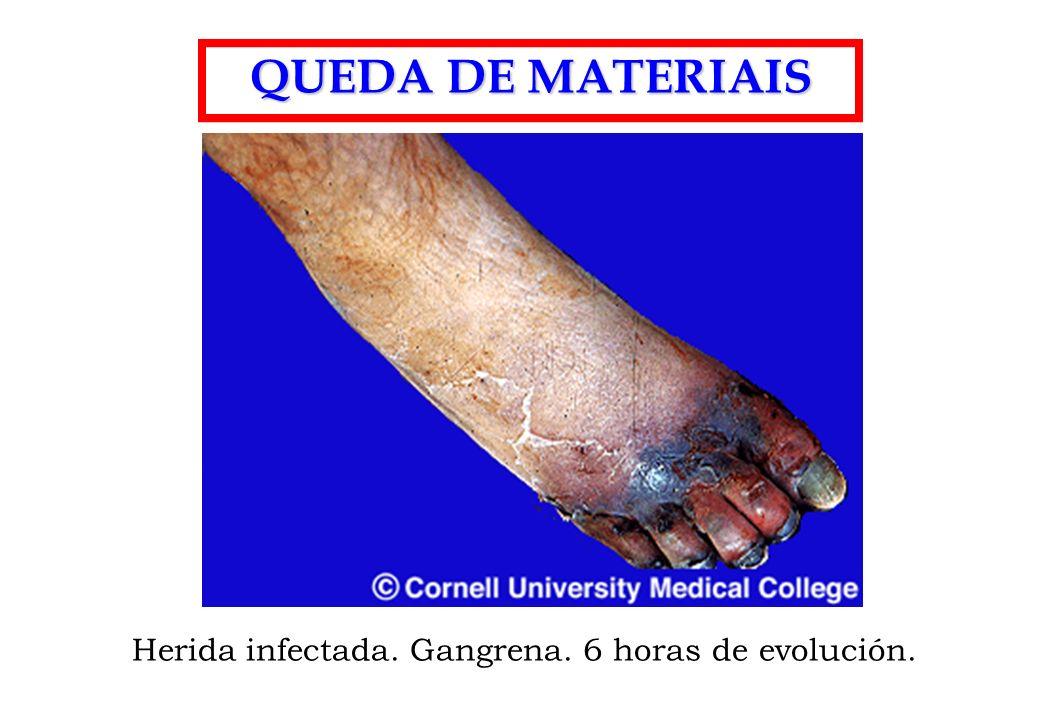 QUEDA DE MATERIAIS Herida infectada. Gangrena. 6 horas de evolución.