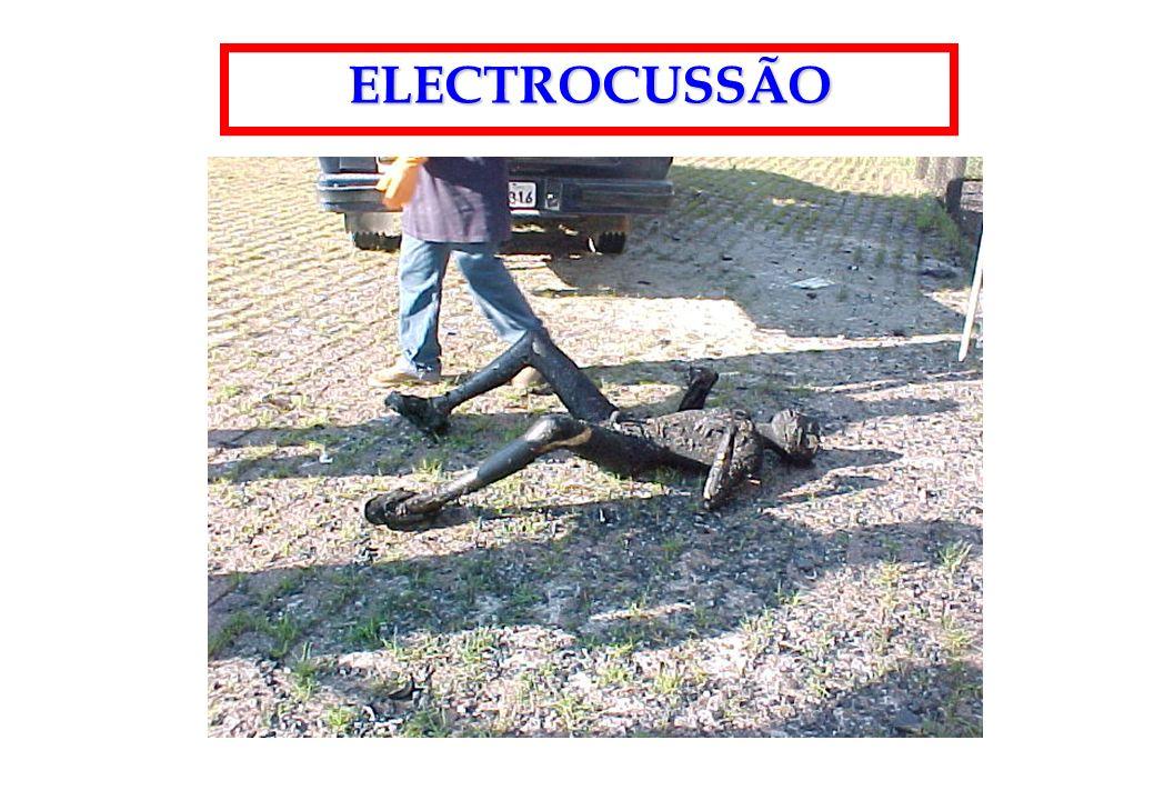 ELECTROCUSSÃO