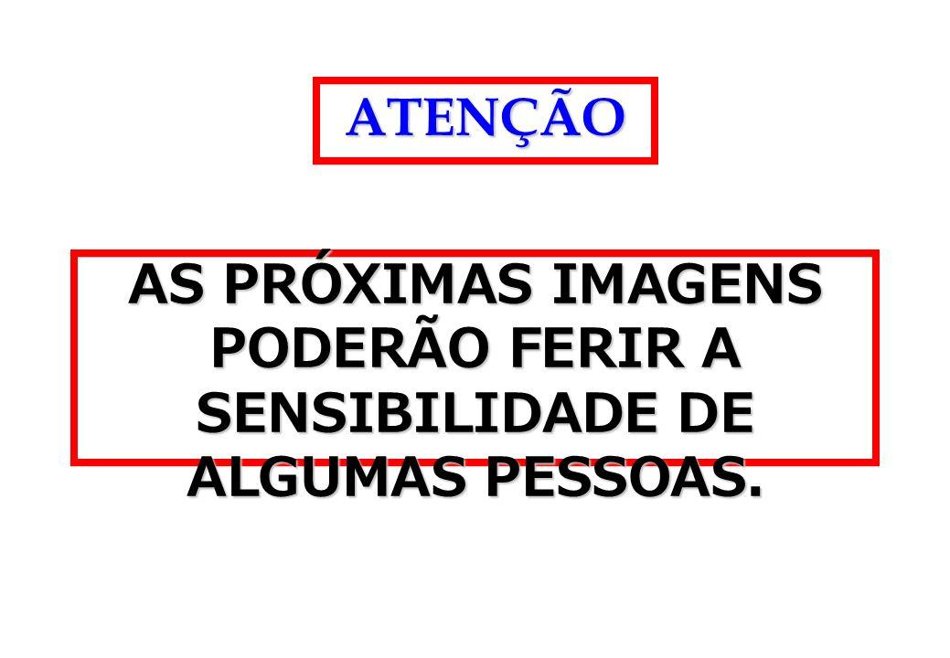 ATENÇÃO AS PRÓXIMAS IMAGENS PODERÃO FERIR A SENSIBILIDADE DE ALGUMAS PESSOAS.