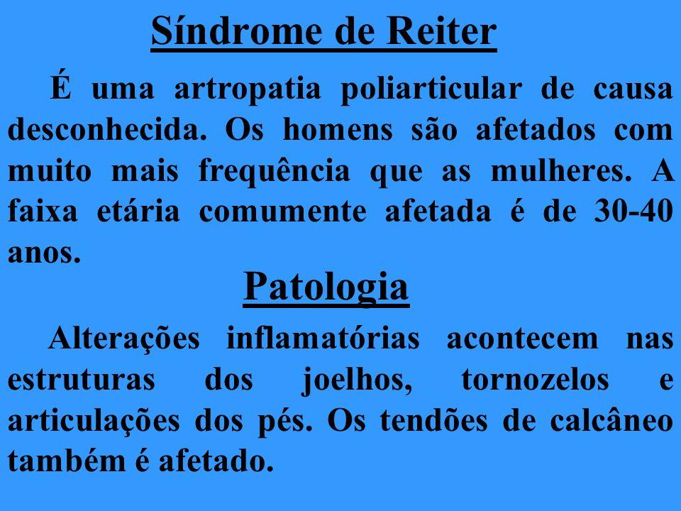 Síndrome de Reiter É uma artropatia poliarticular de causa desconhecida. Os homens são afetados com muito mais frequência que as mulheres. A faixa etá