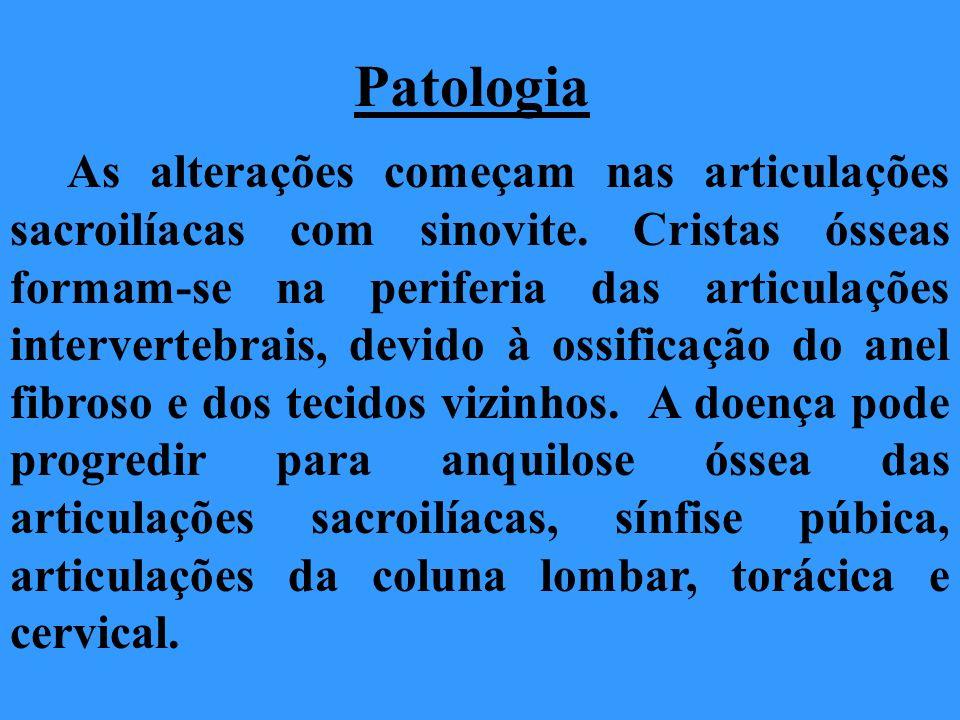 Patologia As alterações começam nas articulações sacroilíacas com sinovite. Cristas ósseas formam-se na periferia das articulações intervertebrais, de
