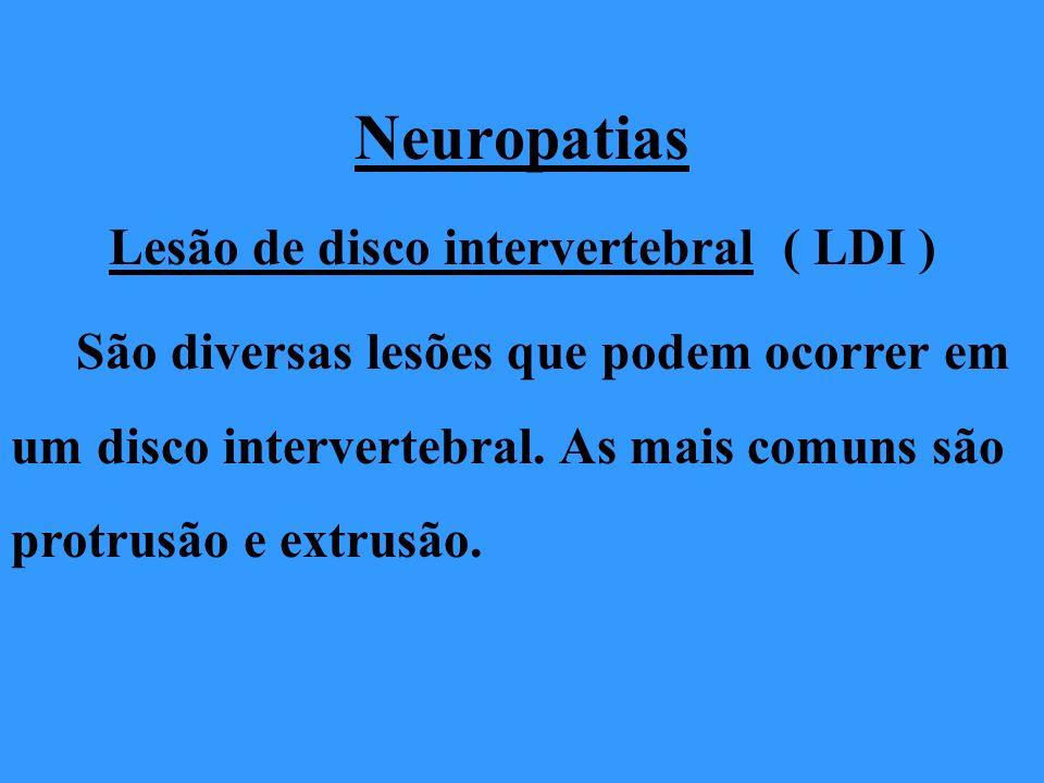 Neuropatias Lesão de disco intervertebral ( LDI ) São diversas lesões que podem ocorrer em um disco intervertebral. As mais comuns são protrusão e ext