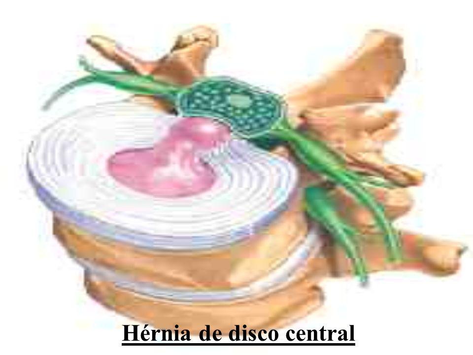 Hérnia de disco central