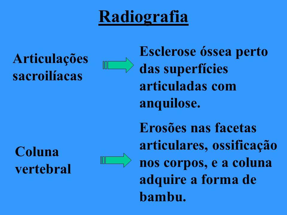Radiografia Articulações sacroilíacas Esclerose óssea perto das superfícies articuladas com anquilose. Coluna vertebral Erosões nas facetas articulare