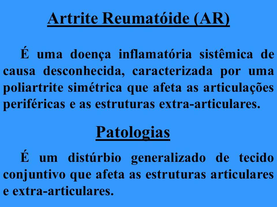 Artrite Reumatóide (AR) É uma doença inflamatória sistêmica de causa desconhecida, caracterizada por uma poliartrite simétrica que afeta as articulaçõ