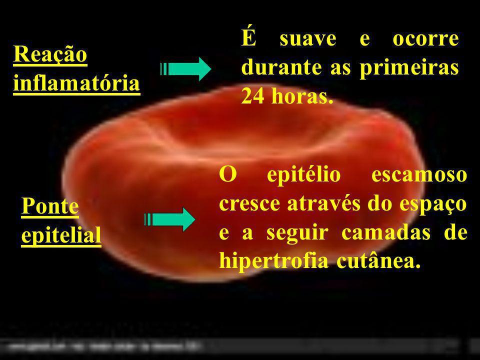 Reação inflamatória É suave e ocorre durante as primeiras 24 horas. Ponte epitelial O epitélio escamoso cresce através do espaço e a seguir camadas de