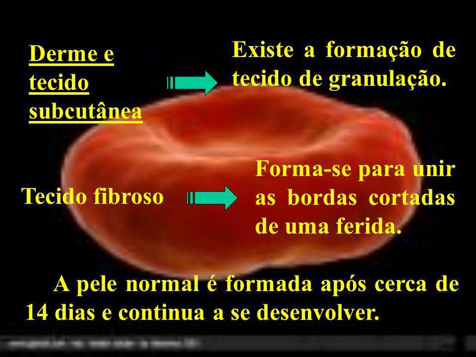Derme e tecido subcutânea Existe a formação de tecido de granulação. Tecido fibroso Forma-se para unir as bordas cortadas de uma ferida. A pele normal