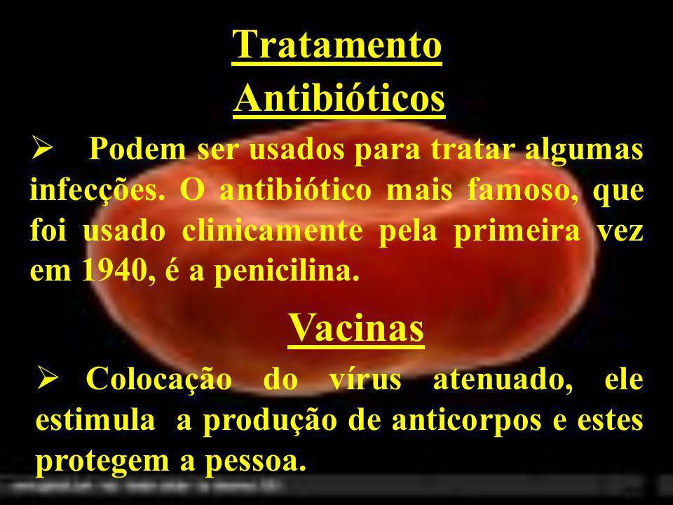 Tratamento Antibióticos Podem ser usados para tratar algumas infecções. O antibiótico mais famoso, que foi usado clinicamente pela primeira vez em 194