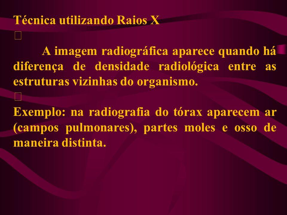 Técnica utilizando Raios X ‡ A imagem radiográfica aparece quando há diferença de densidade radiológica entre as estruturas vizinhas do organismo. ‡ E