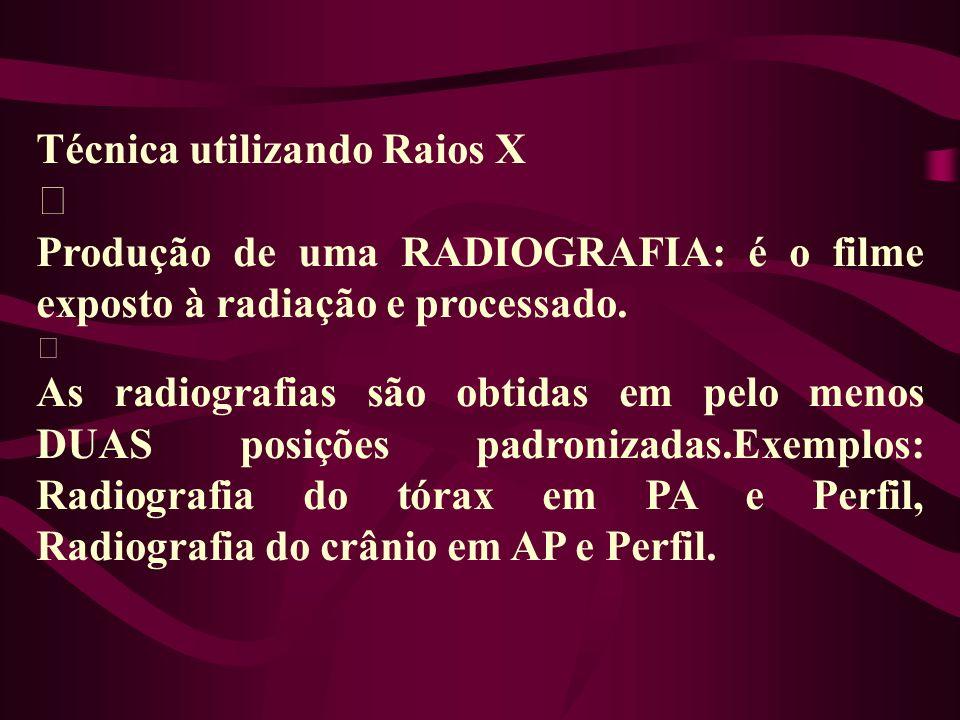 Técnica utilizando Raios X ‡ Produção de uma RADIOGRAFIA: é o filme exposto à radiação e processado. ‡ As radiografias são obtidas em pelo menos DUAS