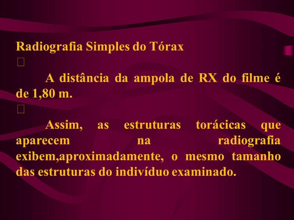 Radiografia Simples do Tórax ‡ A distância da ampola de RX do filme é de 1,80 m. ‡ Assim, as estruturas torácicas que aparecem na radiografia exibem,a